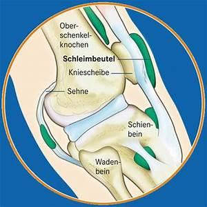 Was tun bei schleimbeutelentzündung im knie