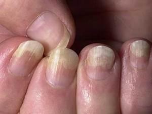 Лечение грибка ногтей на руках в домашних условиях самый быстрый