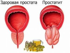 Сходница лечение простатита