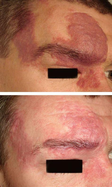 birthmark treatment    aesthetic medicine
