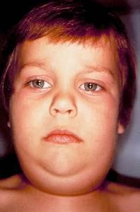 Mumps; Parotitis, Epidemic