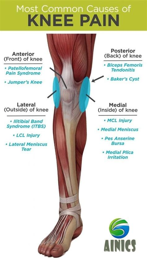 Most common causes of Knee pain - ainics