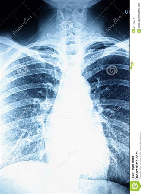 ray traumatology patient