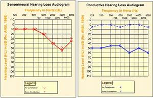 Hearing Loss Compensation Table