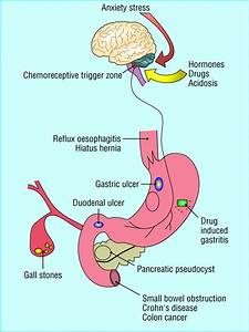 Anorexia  Nausea  Vomiting  And Pain