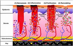 Phases Of Wound Healing  The Four Phases Of Wound Healing