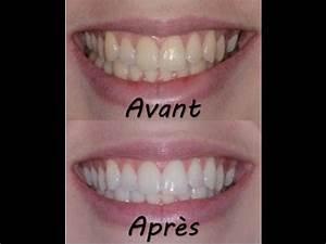 Avant Après : mon blanchiment dentaire exp rience conseils avant apr s youtube ~ Melissatoandfro.com Idées de Décoration