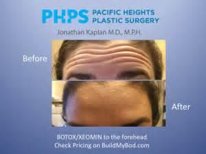 long    botox  fillers  work video