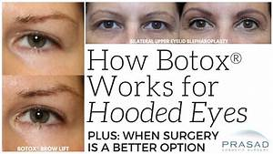 How Botox can Help With Slightly Hooded Eyes, and When ...