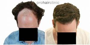 Prohairclinic  Belgium  Manual Fue  Frontal Area  3000 Grafts