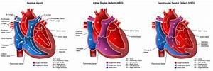 Heart Defects, Congenital; Heart Abnormalities