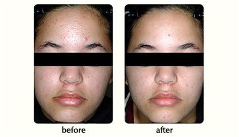 blue light therapy for acne seattle acne laser treatment l juvederm l arlington kent