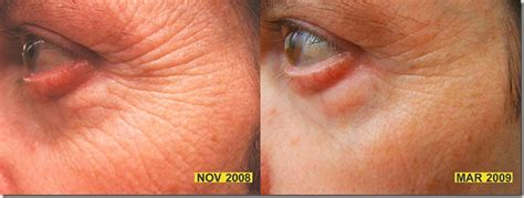 led light therapy before and after how you can easily diminish wrinkles with red light