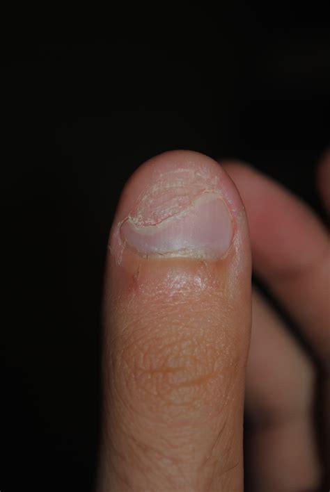 Receding Nail Bed by Peeling Fingernails Nail