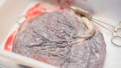 cuisiner placenta le placenta doit maintenant être remis aux parents qui le