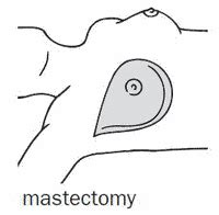 Modified Synonym Dictionary by Mastectomy Definition Of Mastectomy By The Free Dictionary