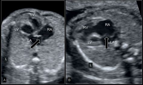 hypoplastic left heart syndrome  critical aortic