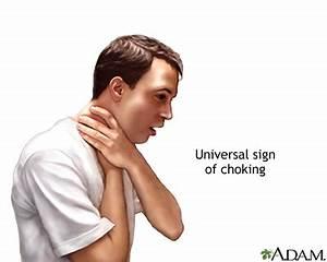 Blockage Of Upper Airway Uf Health University Of