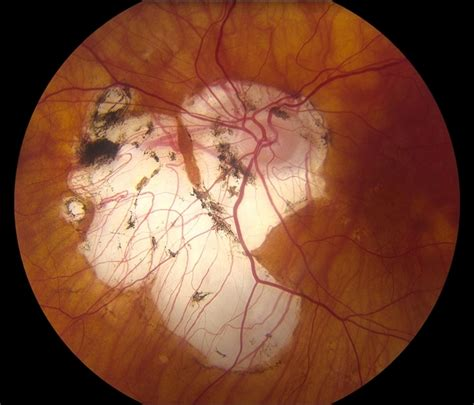 myopic degeneration  rpe loss retina image bank