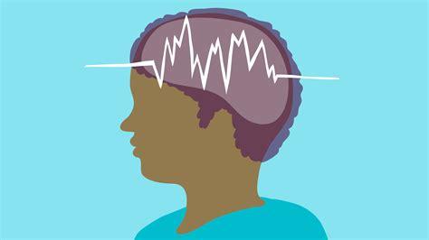 epilepsy articles symptoms treatment