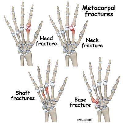 Metacarpal Fracture Tattoo Ideas Hand Injuries