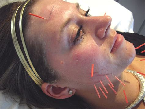 cosmetic acupuncture natural balance acupuncture clinic