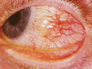 Episcleritis - Pictures, Symptoms, Treatment, Causes