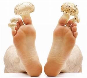 Средство от грибка ногтя на ноге