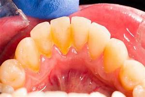 Irritated gums from dentures