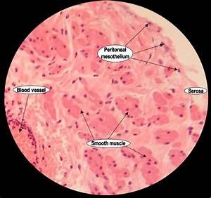 Histoquarterly  Fallopian Tube