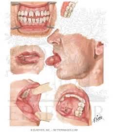 Primary Syphilis - Syphilis - Pinterest Syphilis - primary