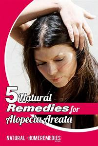 5 Natural Cures For Alopecia Areata How To Cure Alopecia
