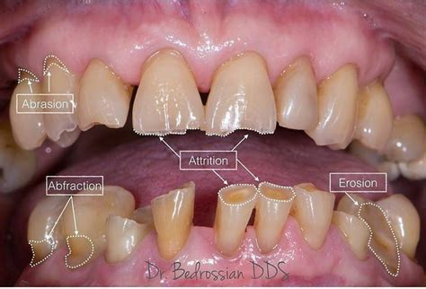 Difference between dental attrition, abfraction, erosion