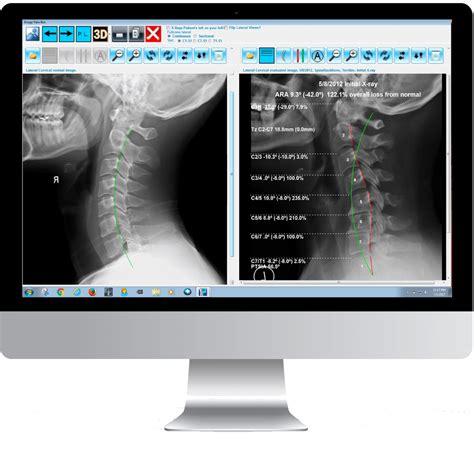 postureray  ray analysis emr software  chiropractors