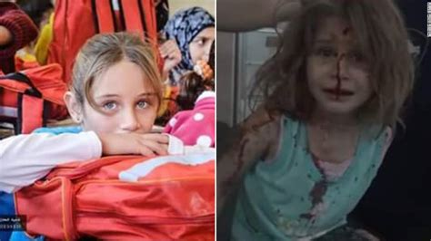powerful images  wounded syrian girl  viral cnn