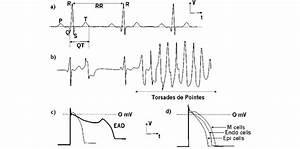 A  Standard Ecg With Pqrst Complex And Qt  Rr Interval  B  Torsades De