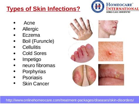 Homeopathic, medicines for, treatment of, psoriasis - Welling Clinic