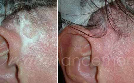permanent makeup microblading scar camouflage areola