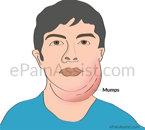 Symptoms Mumps Virus