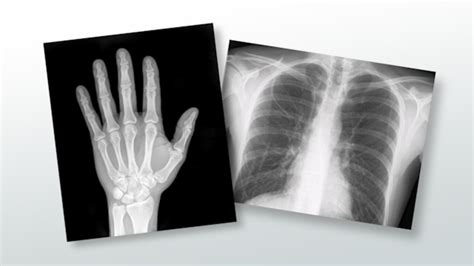 important terminology  medical radiology video