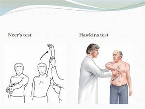 ac joint pain test