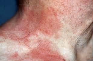 Atopic Dermatitis Eczema