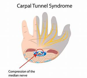 Explainer  What Is Carpal Tunnel Syndrome And What Happens If I Get It