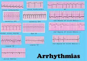 Heartbeat, Have more and Heart disease on Pinterest  Heart Diseases Arrhythmia