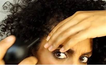 Traction Alopecia Hair Hiding Hide Hacks Easy