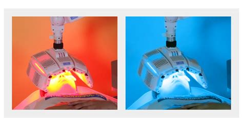blue light photodynamic therapy does photodynamic therapy pdt work for acne levulan