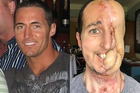 This Man Lost Half His Face To Cancer, But Had It Rebuilt