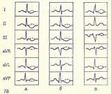 Что такое гипертония левого желудка