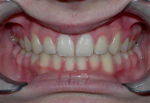 Before & After Photo Gallery, Orthodontics Barrington IL ...