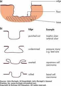26 Pressure Ulcer Sites Diagram